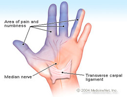 Carpal Tunnel Syndrome and Ulnar Nerve Entrapments