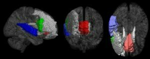 Brain areas best predicting musicianship. Red: left/right anterior cingulate gyrus; Green: right inferior frontal gyrus; Blue: right superior temporal gyrus; Gray: caudate nucleus, middle frontal gyrus, inferior frontal gyrus. Credit: Image courtesy of University of Jyväskylä