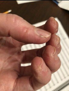 ouch chewed up fingers