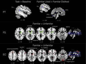"""The areas of the brain for reward and social awareness uniquely activate in people with higher empathy when they listen to music."" ( Science Daily/SMU/UCLA )"