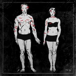 Wounds of Don Fabrizio Carafa and Donna Maria d'Avalos from The Gesualdo murders